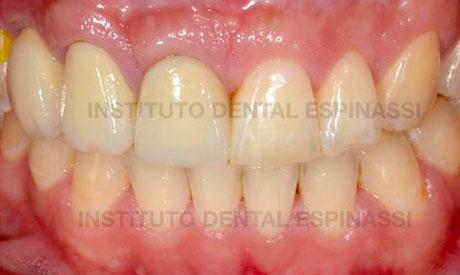 Implante dental calle goya